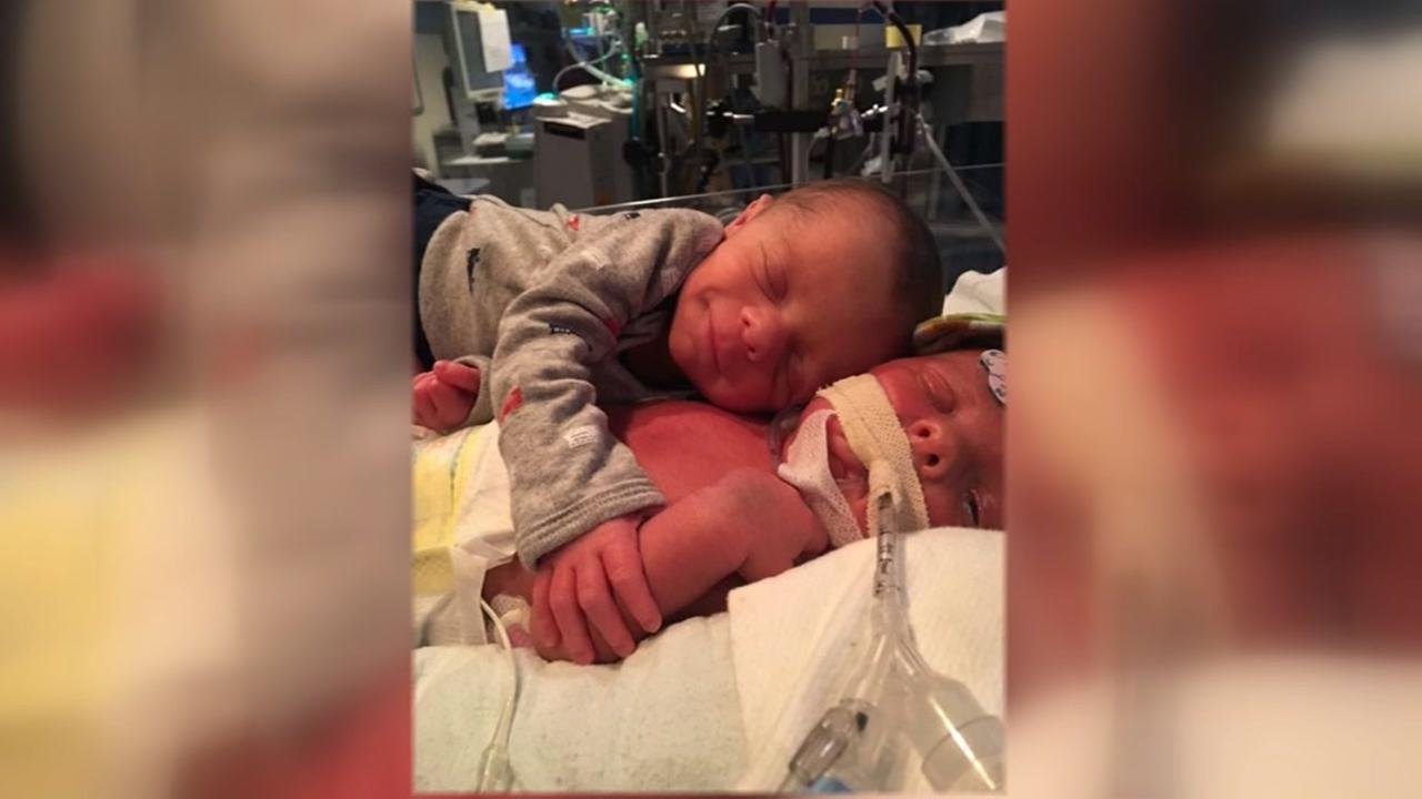 Thousands Mourn Death of One of the Viral Hugging Twins