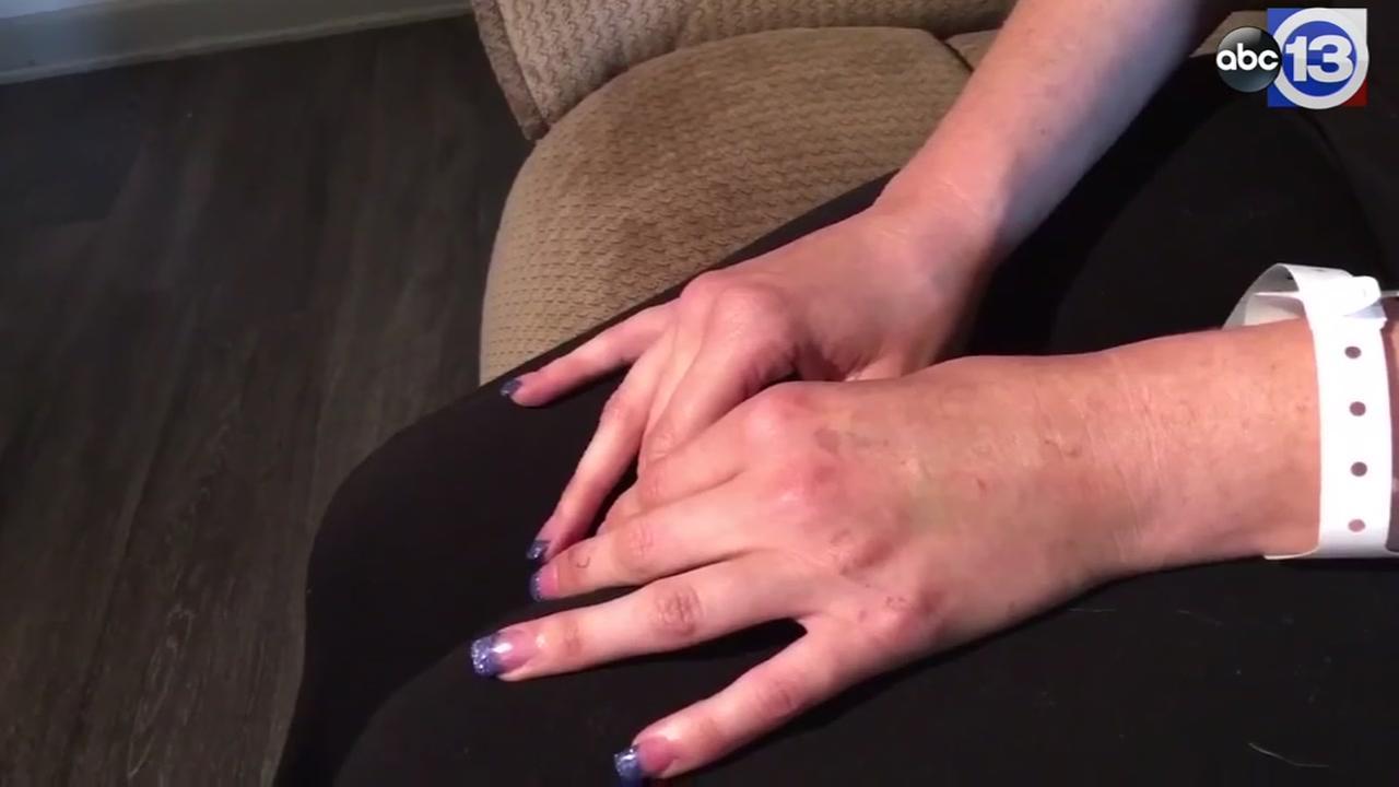 Sex assault victim speaks out