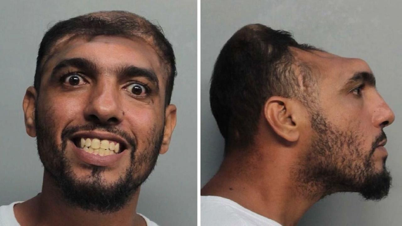 Half-headed man arrested on arson charges
