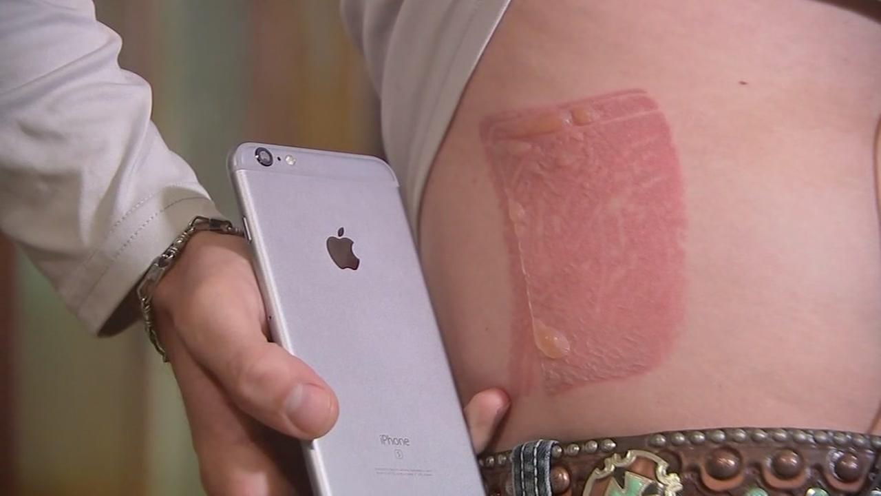 Lake Jackson man burned by his iPhone