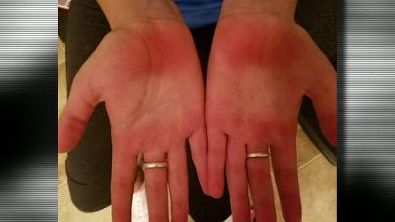 Mom says students burned during PE class punishment