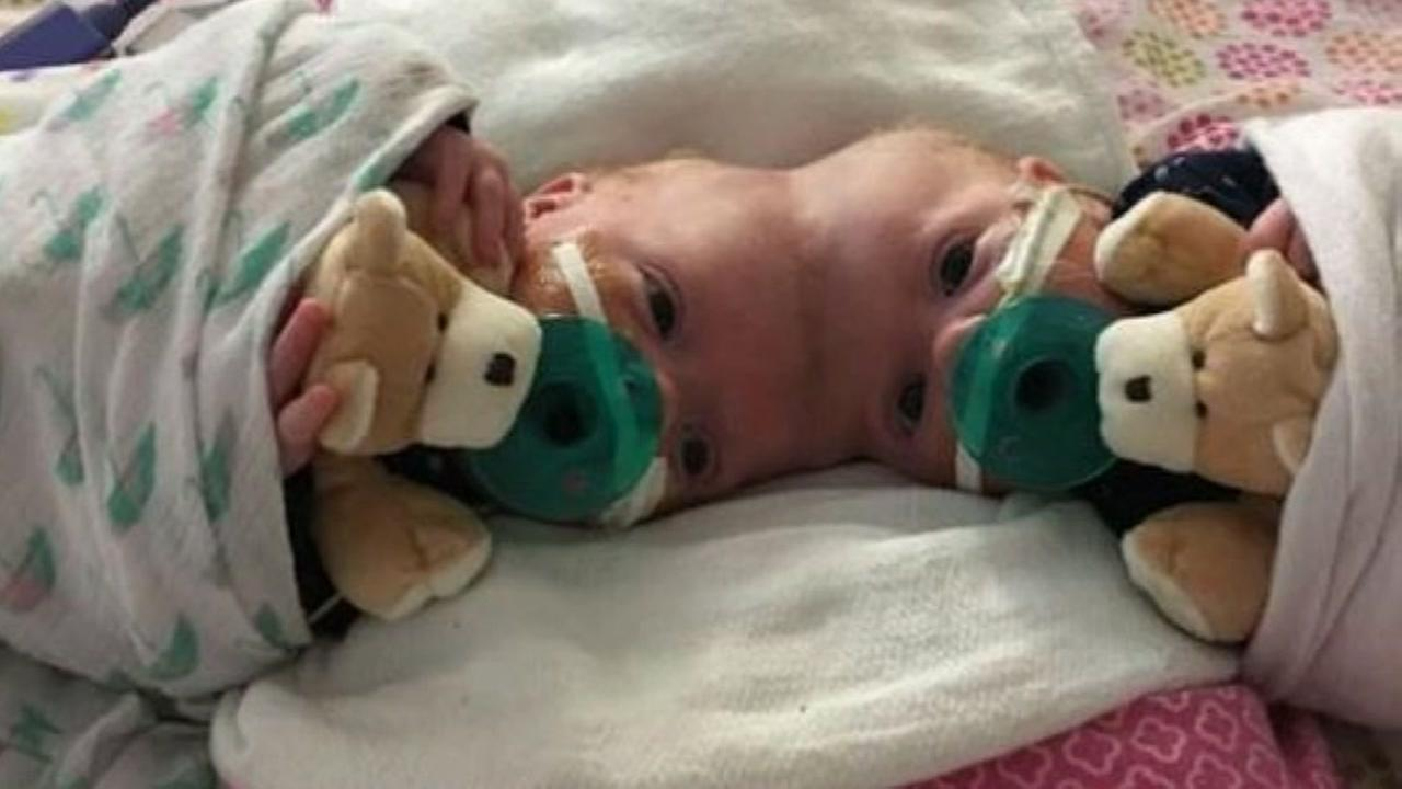 Conjoined twins sleeping side by side after surgery