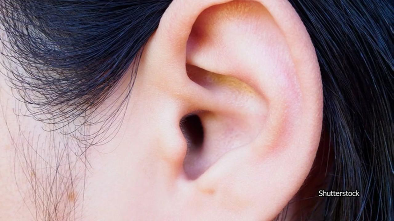 Researcher wants your earwax and dirty armpits