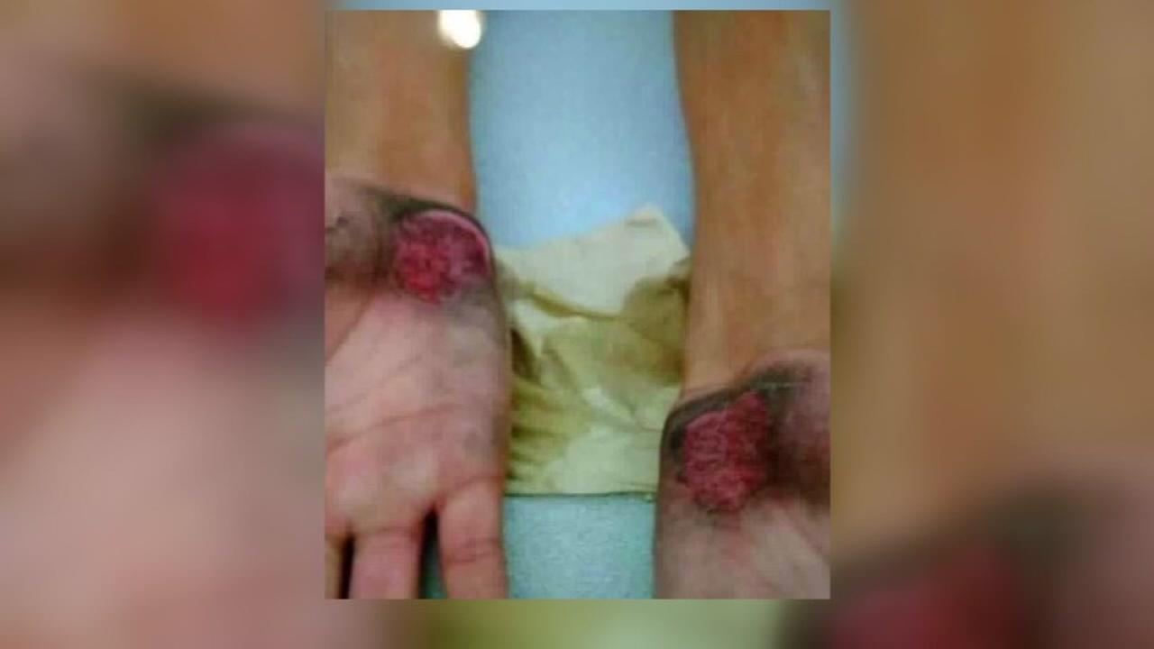 Son burned at football practice, mom raises awareness