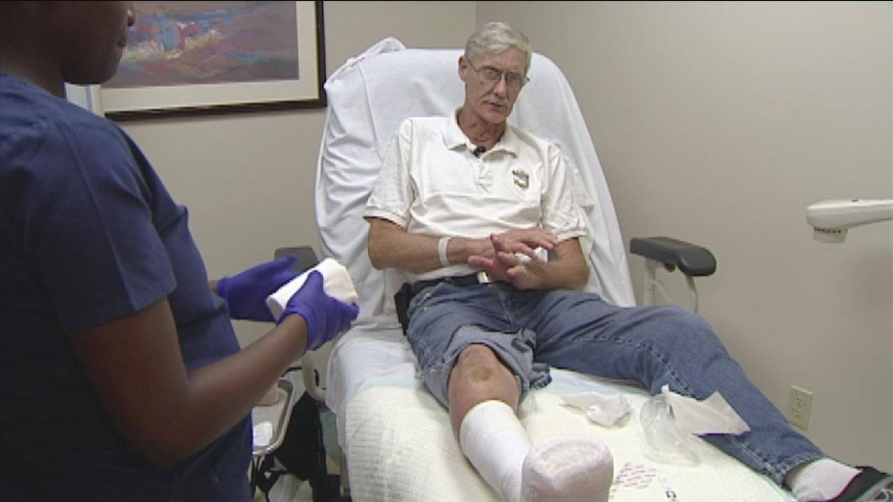Man loses toes to strep infection