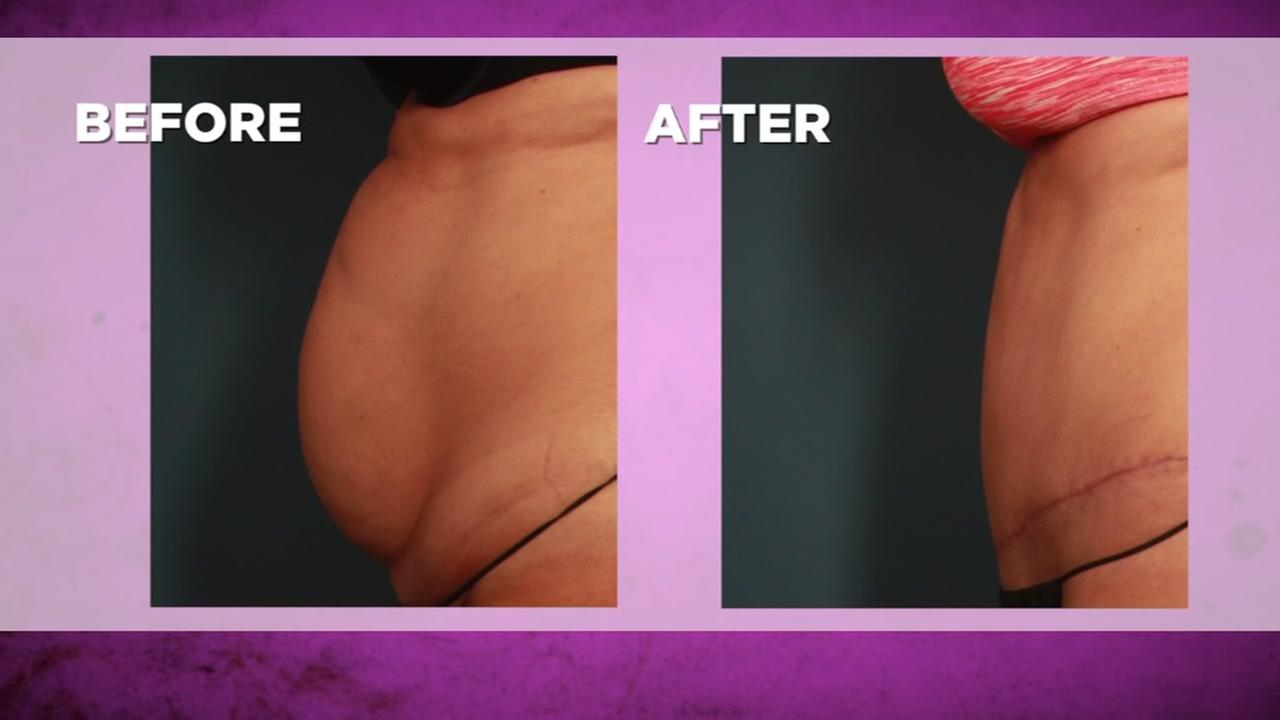 Abdominal wall repair gets rid of dreaded mom belly