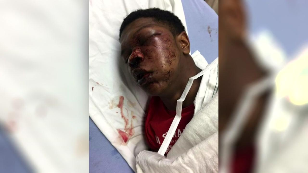 Teen allegedly beaten by police