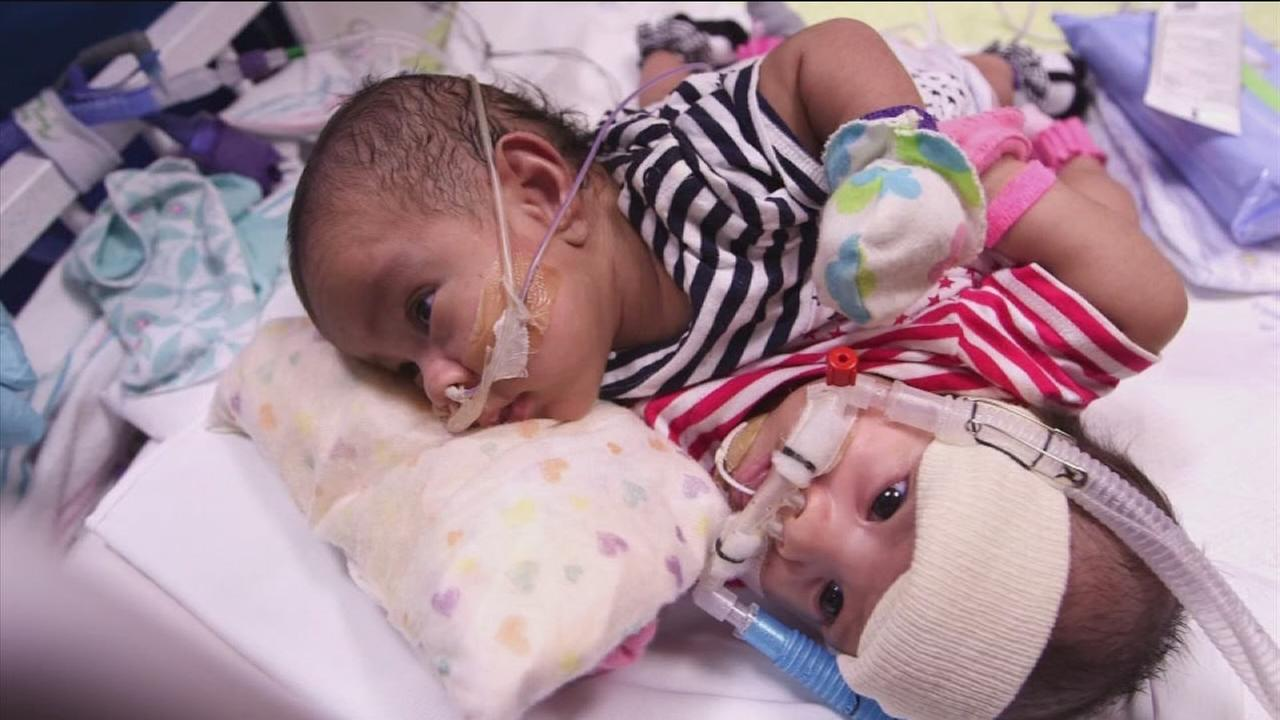 First look at conjoined twins born at TCH