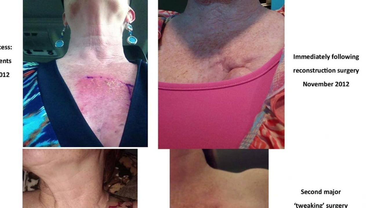 Woman highlights mammogram tattoos on Facebook