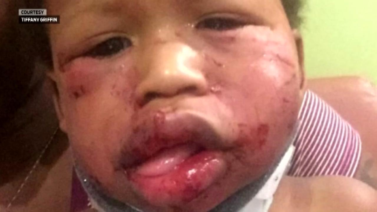 Day care where toddler was beaten has been ordered closed