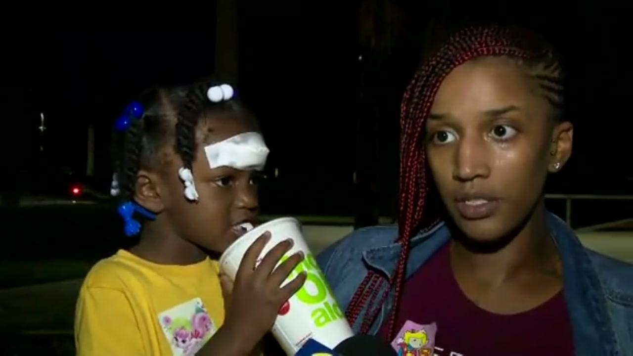 Mother says she could see daughters skull after injury at daycare