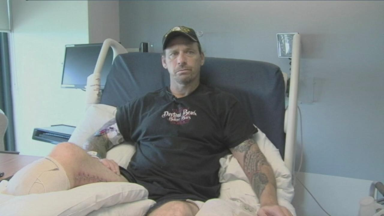 Man recovering from flesh eating bacteria