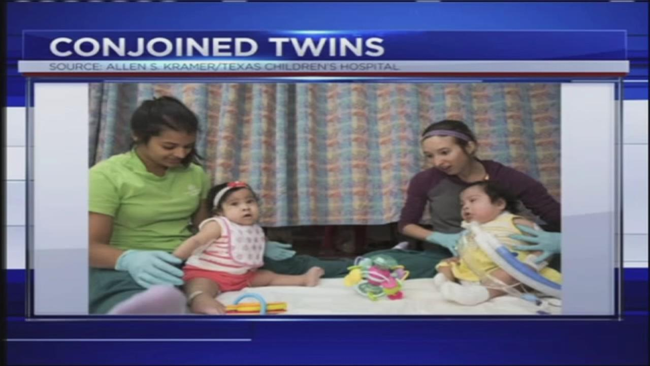 Formerly conjoined twin discharged from hospital