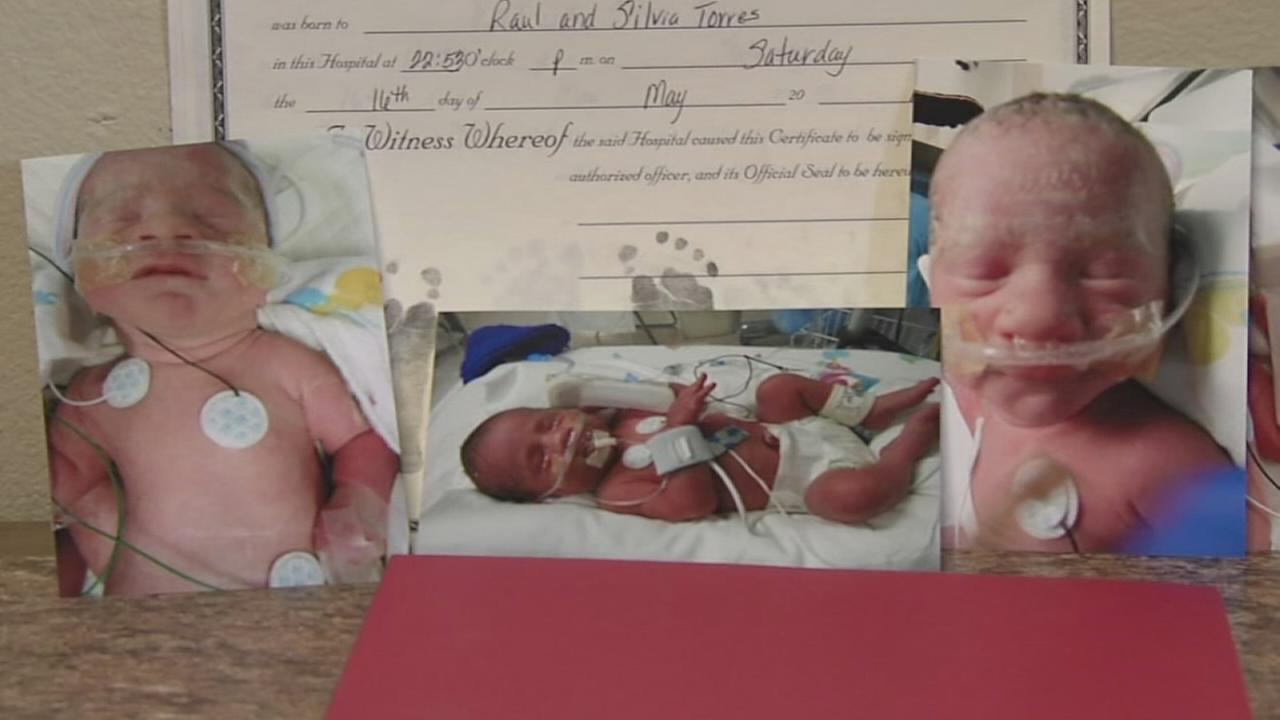 Conjoined twins among identical triplets