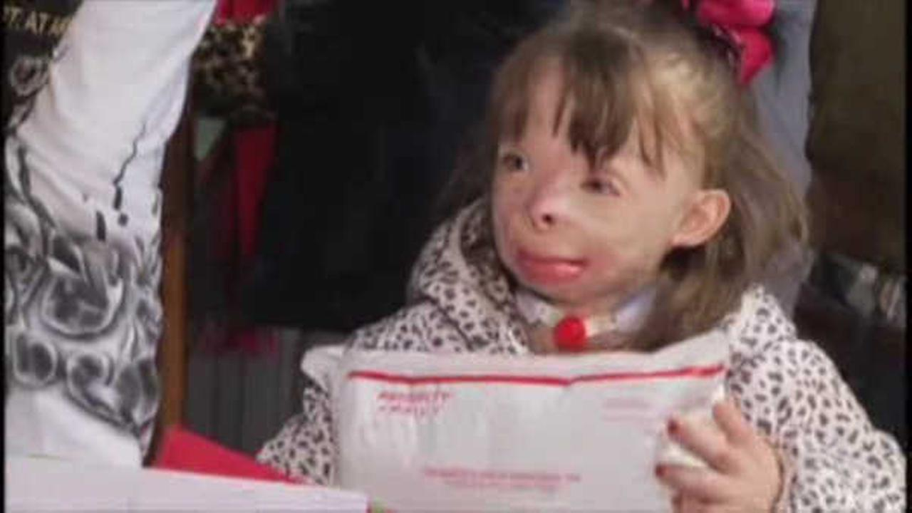Police: Volunteer stole money from burn victim\'s Christmas cards ...