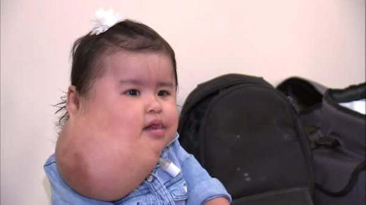 1-year-old Queens girl with rare neck growth has successful surgery