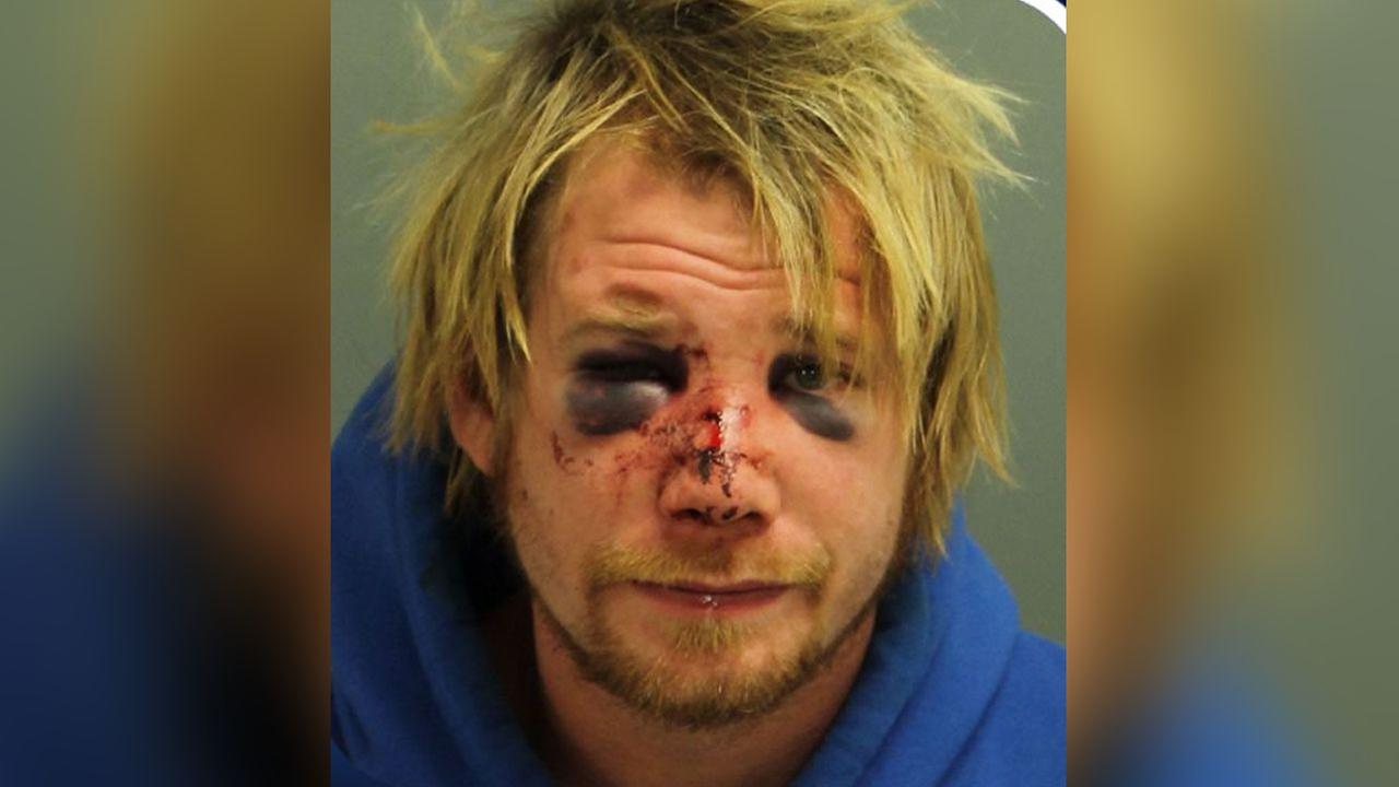 Mugshot: Intruder beaten with firewood after breaking into home