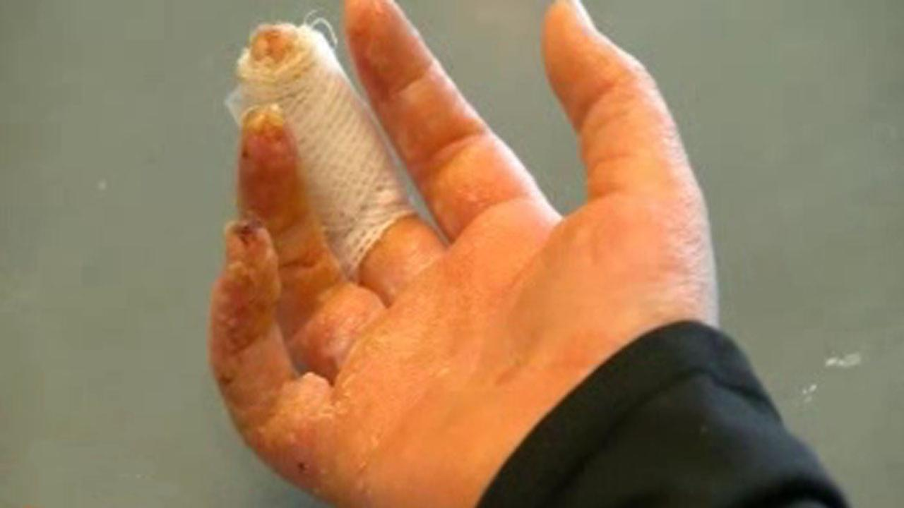 Girl ends up with 3rd-degree burns from homemade slime