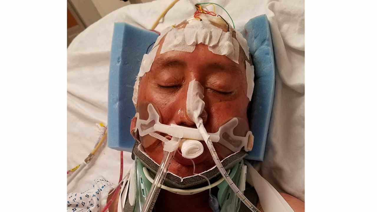 Police are trying to identify a man found unconscious in Midwood.