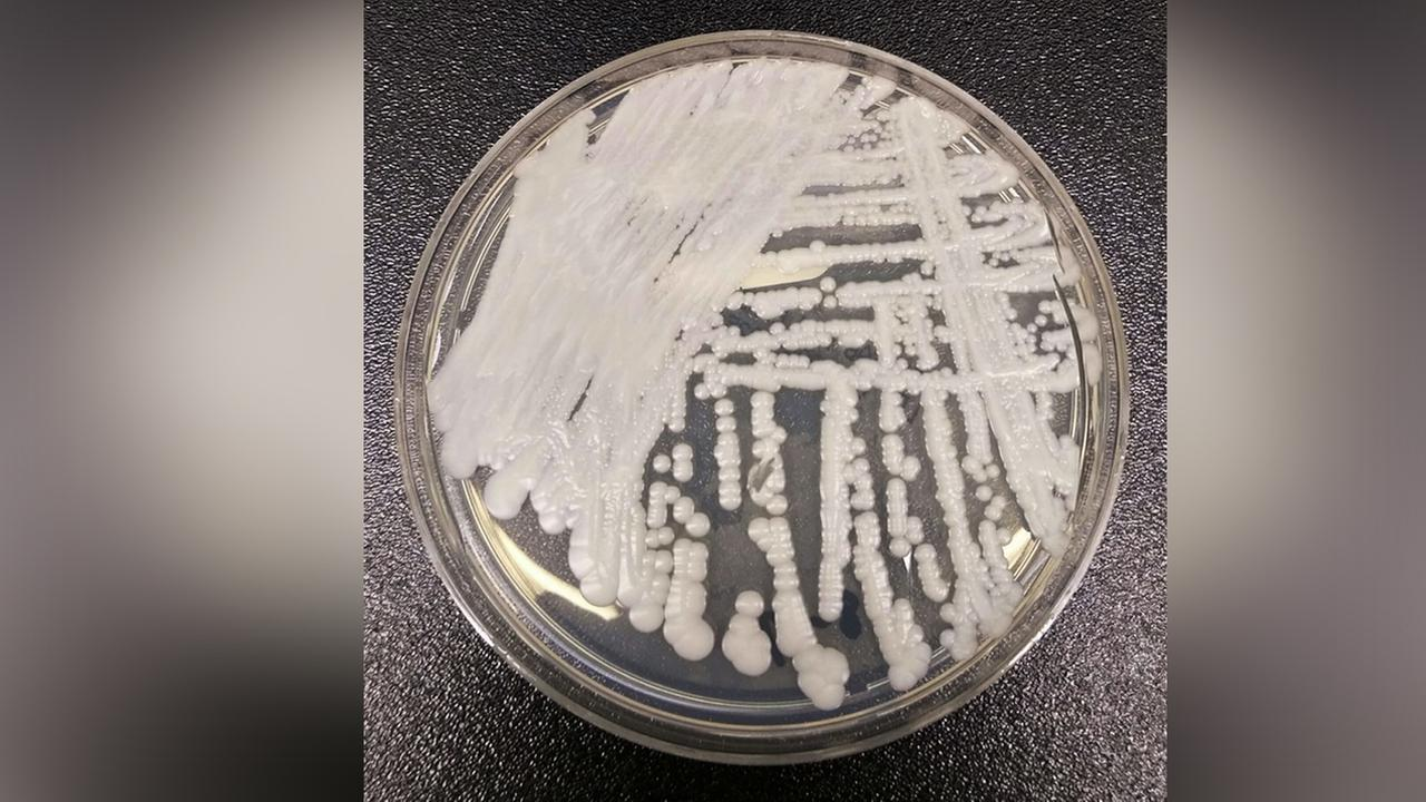 This undated photo from the Centers for Disease Control and Prevention shows a strain of Candida auris cultured in a petri dish at a CDC laboratory. (Shawn Lockhart/CDC via AP)