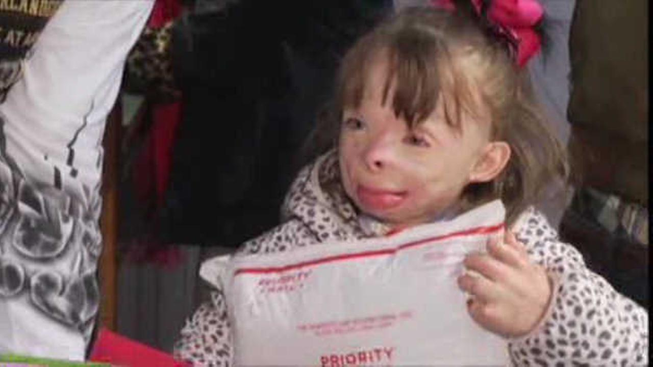 badly burned little girl who wished for christmas cards gets more
