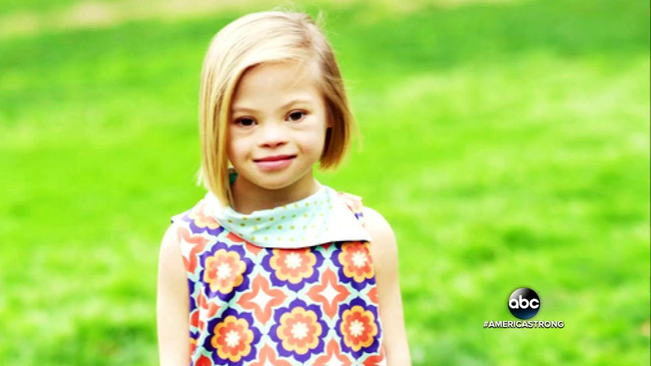 Above Downs syndrome girl facebook much