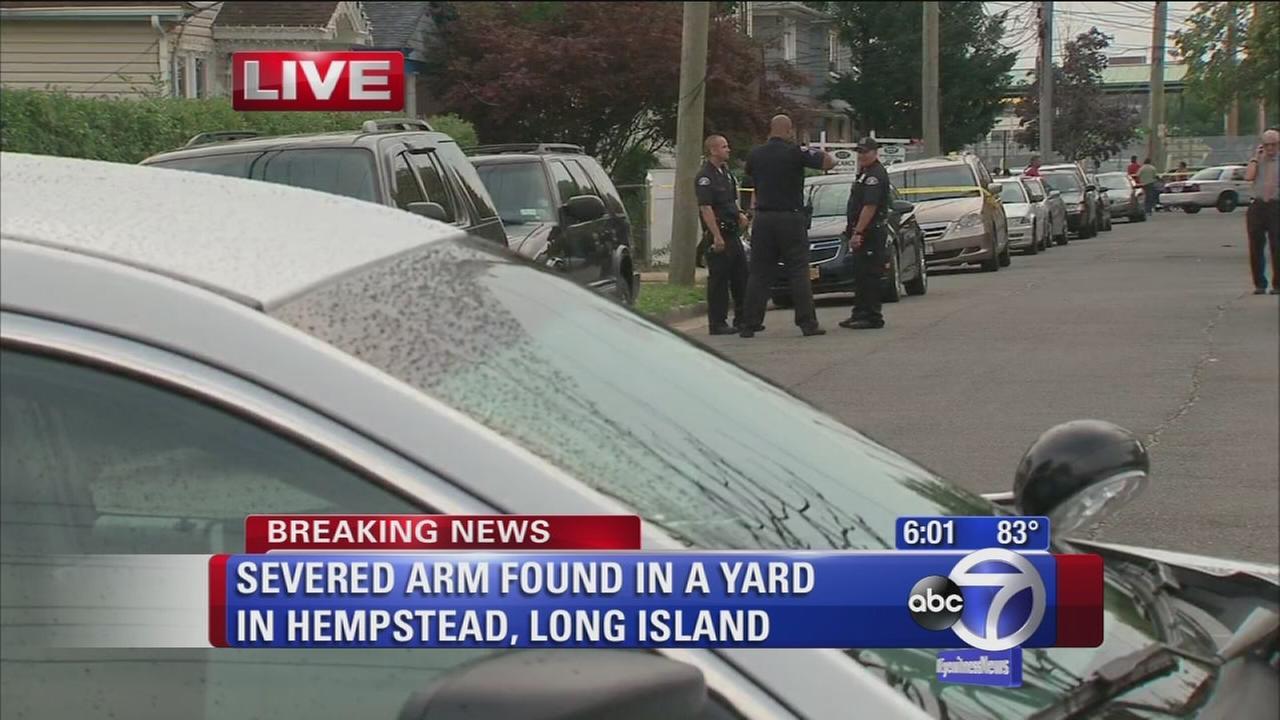Severed arm found in Hempstead yard