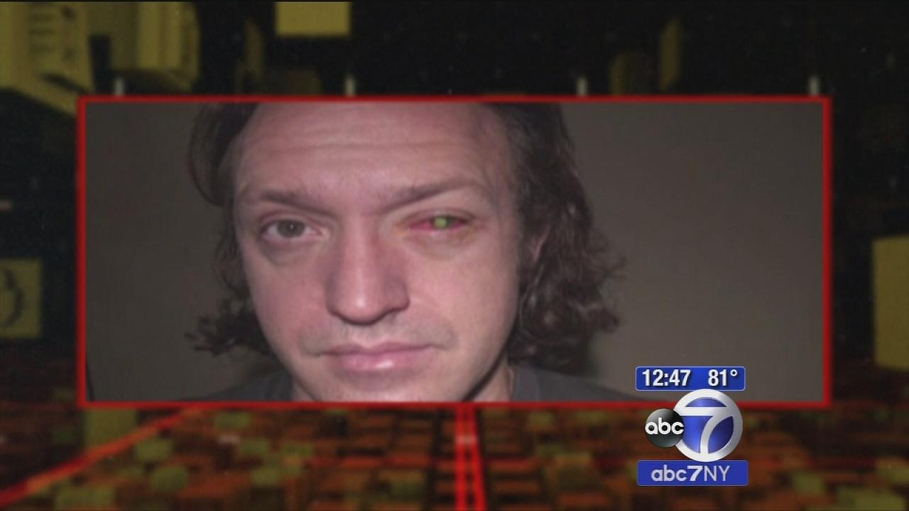 Man goes blind in 1 eye after sleeping in contacts