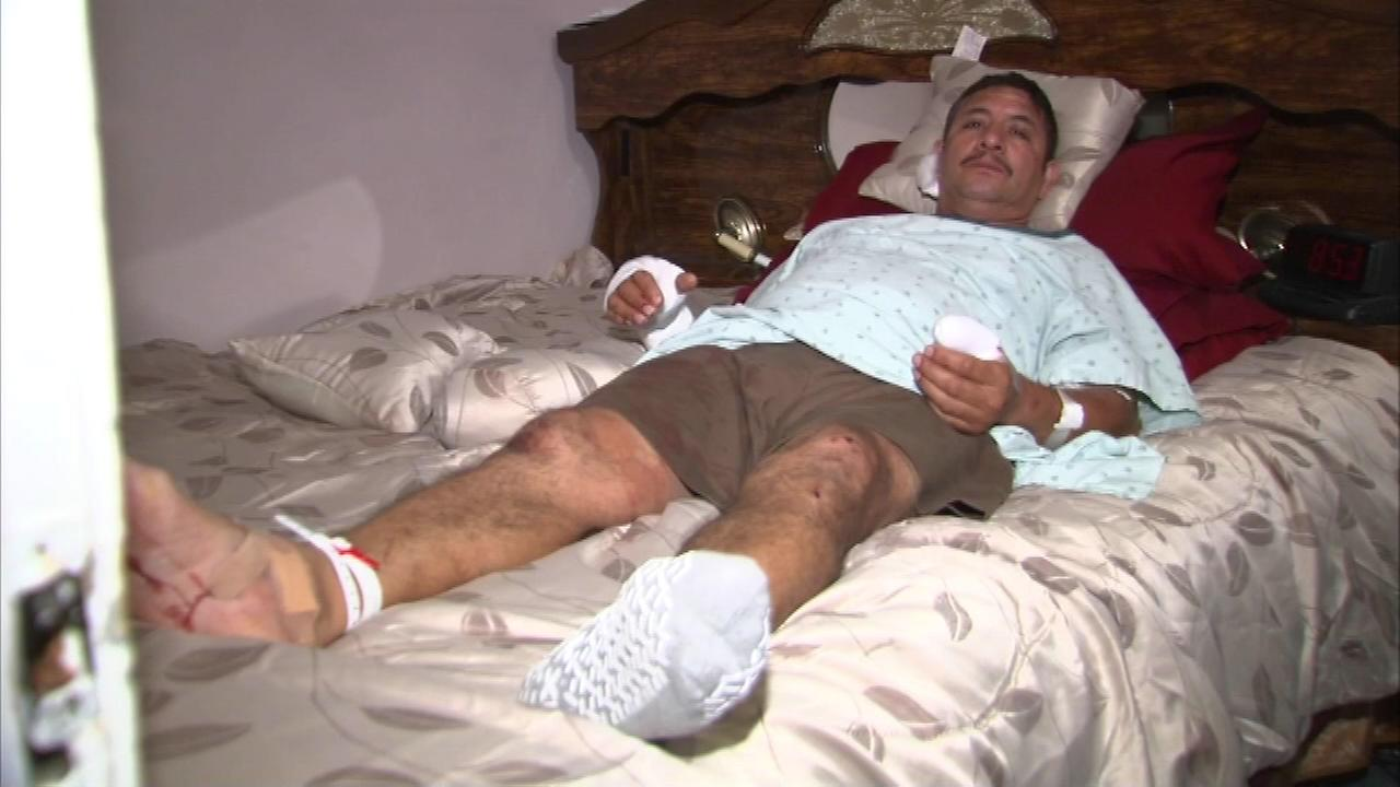 Jesus Toledo is a UPS worker who was attacked by a pit bull while working his route.