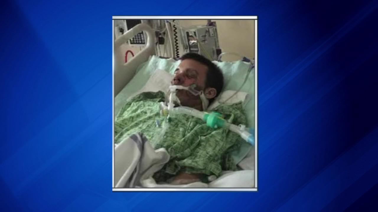 Theres a warning about e-cigarettes after one of them exploded, leaving a Florida man in a medically-induced coma.