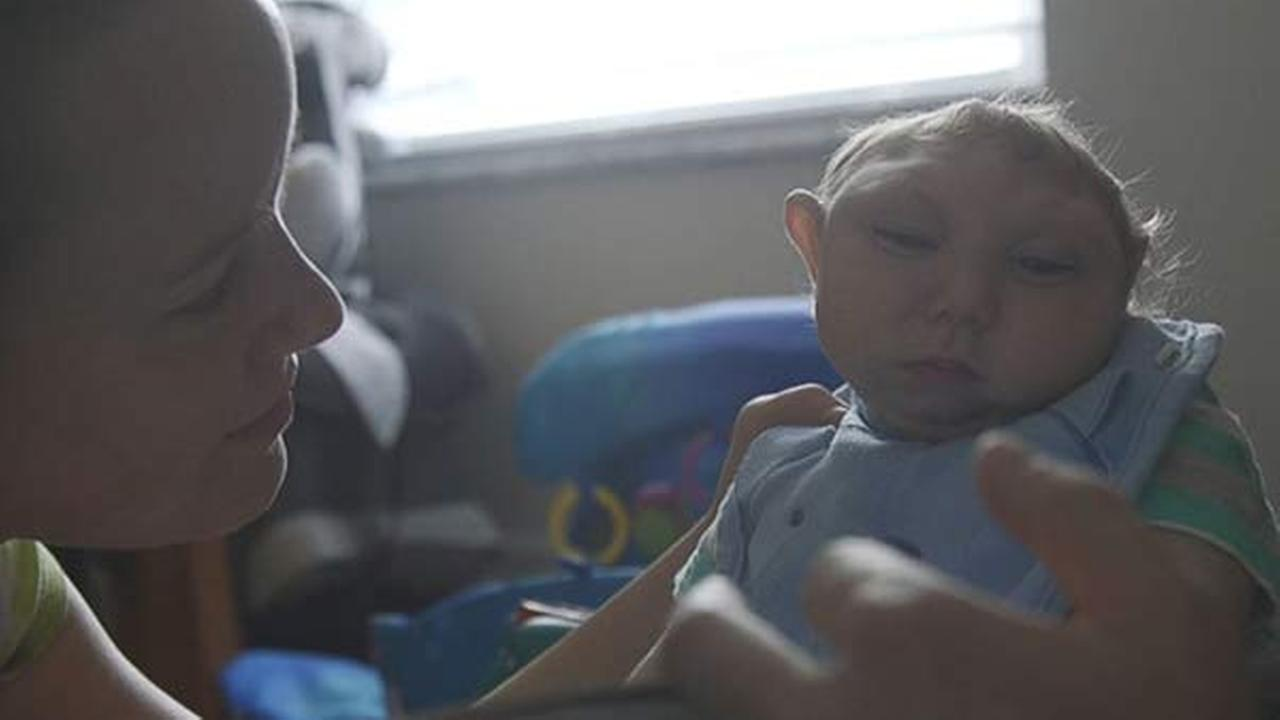 Baby born with partially developed brain beats odds to reach 2nd birthday