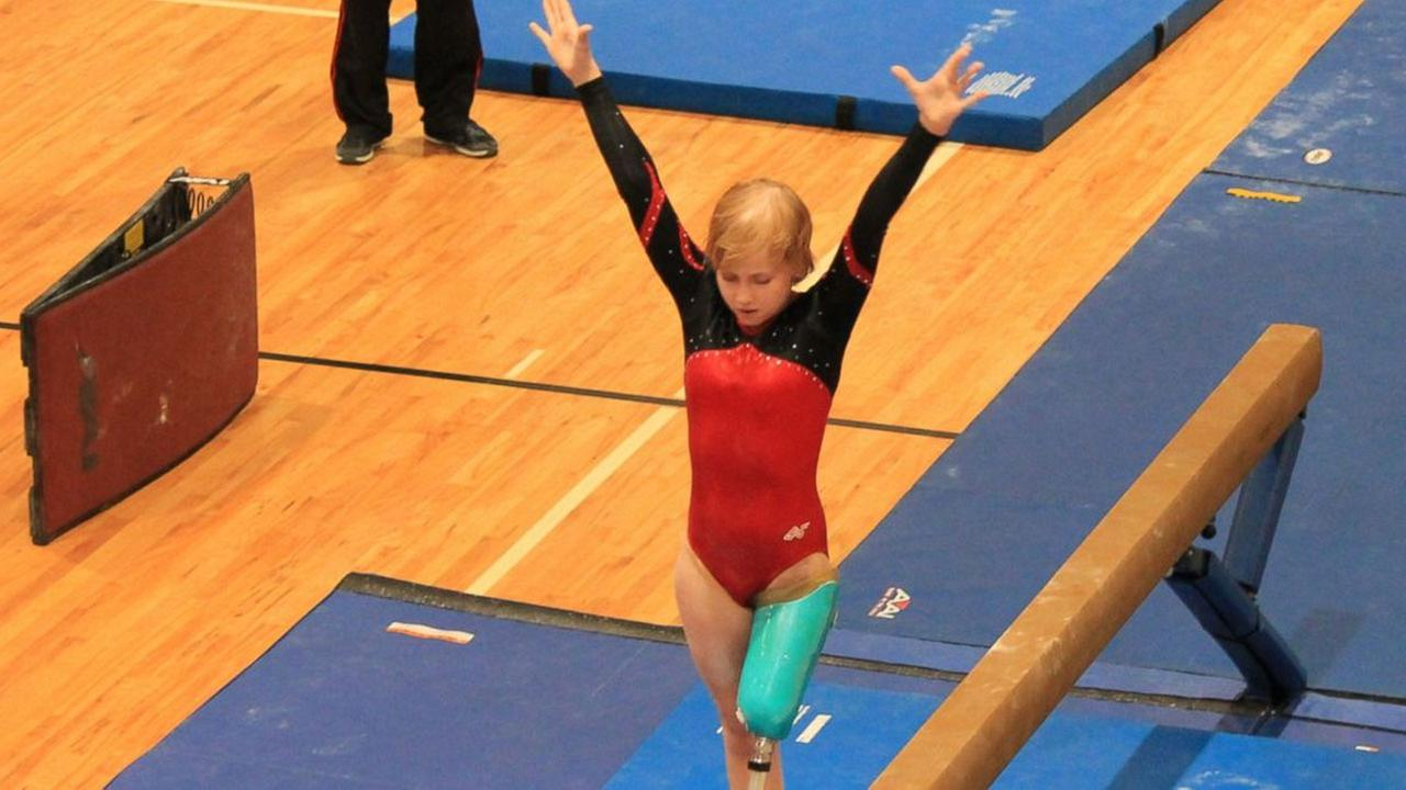 Kate Foster lost her leg to a leukemia-related infection when she was 12, but she didnt allow the loss to keep her from being a gymnast.