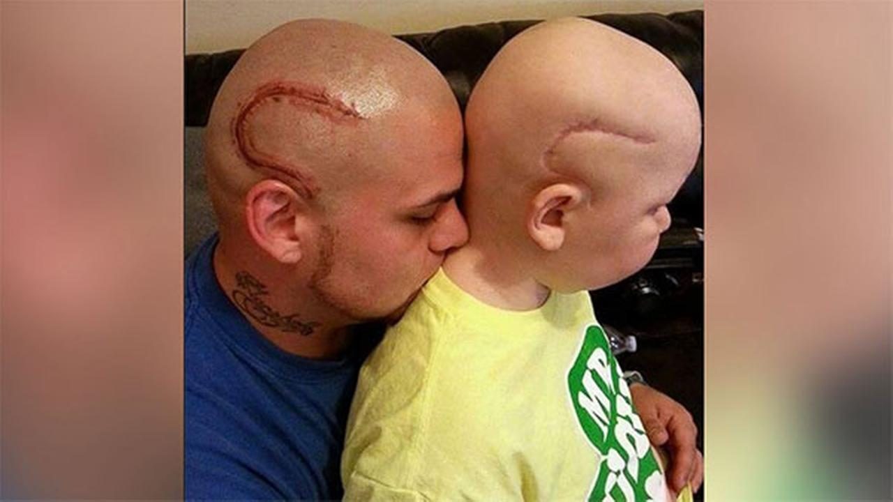 Josh Marshalls tattoo to match his sons scar was done by Merl Kent of Point Blank Tattoo.
