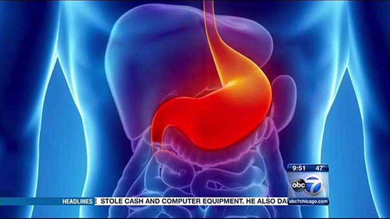 Drug-free relief for reflux sufferers