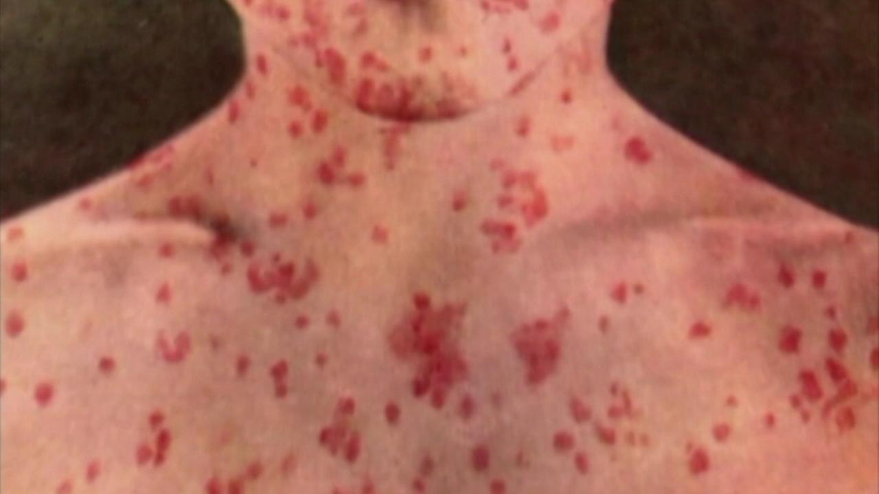 Measles (FILE)