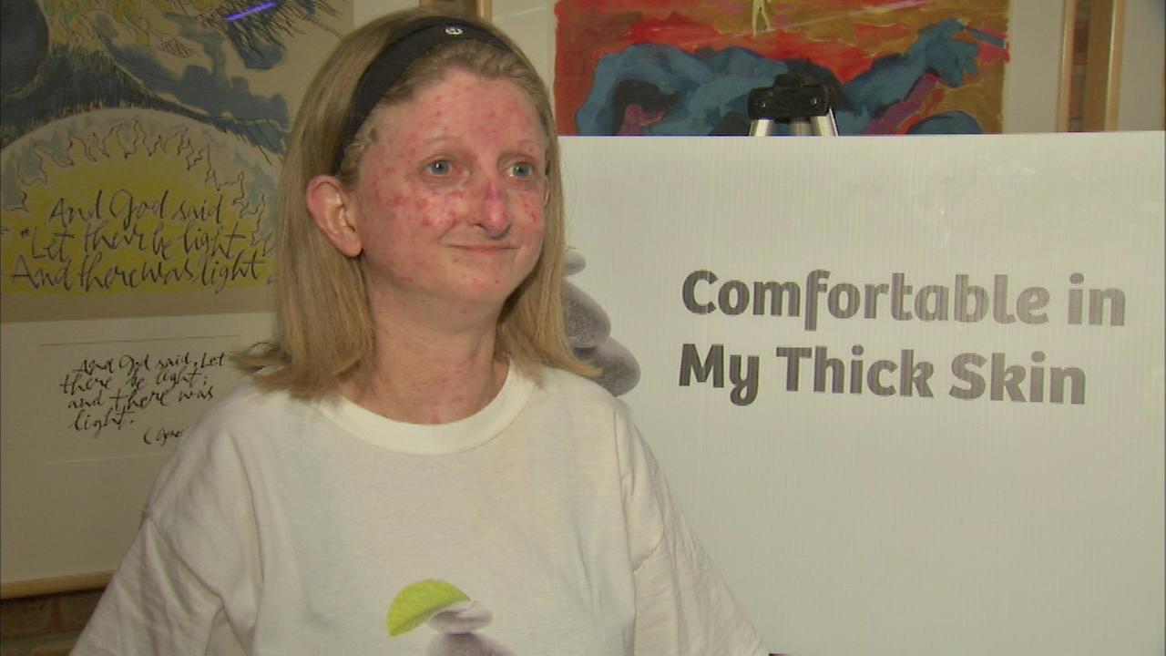 Face Off for Scleroderma in Highland Park was organized by Lisa Goodman-Helfand.