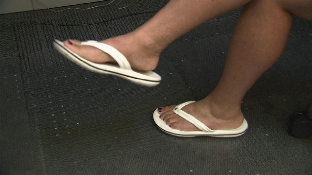 Doctors warn of flip flop health hazards