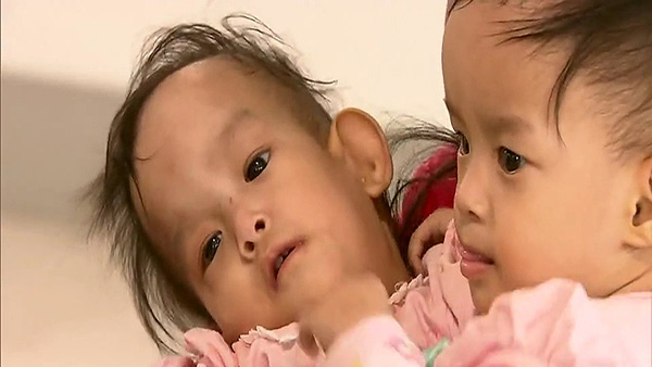 Bhutanese twins Dawa and Nima were joined at the abdomen and have grown up facing each other, unable to move freely.