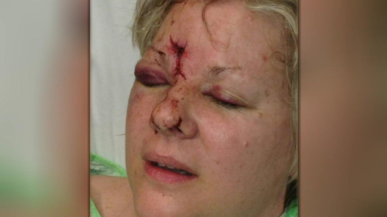 Patricia Higgins was hurt at a Stanley Cup Finals game in 2013.