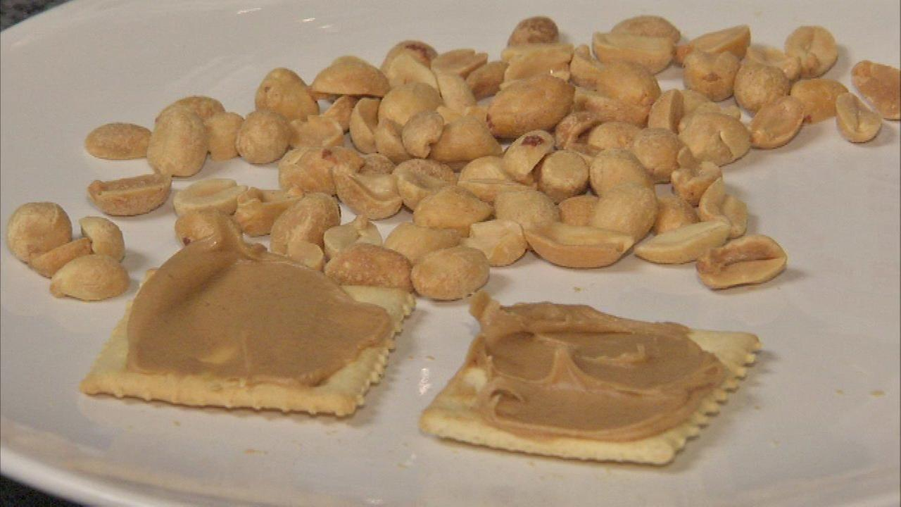 Peanut allergy skin patch could help kids, study says