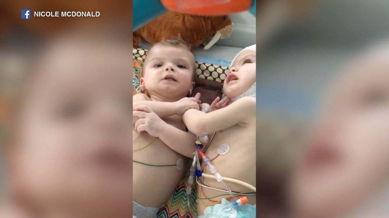Formerly conjoined twins Jadon, Anias say 'dada' in latest video