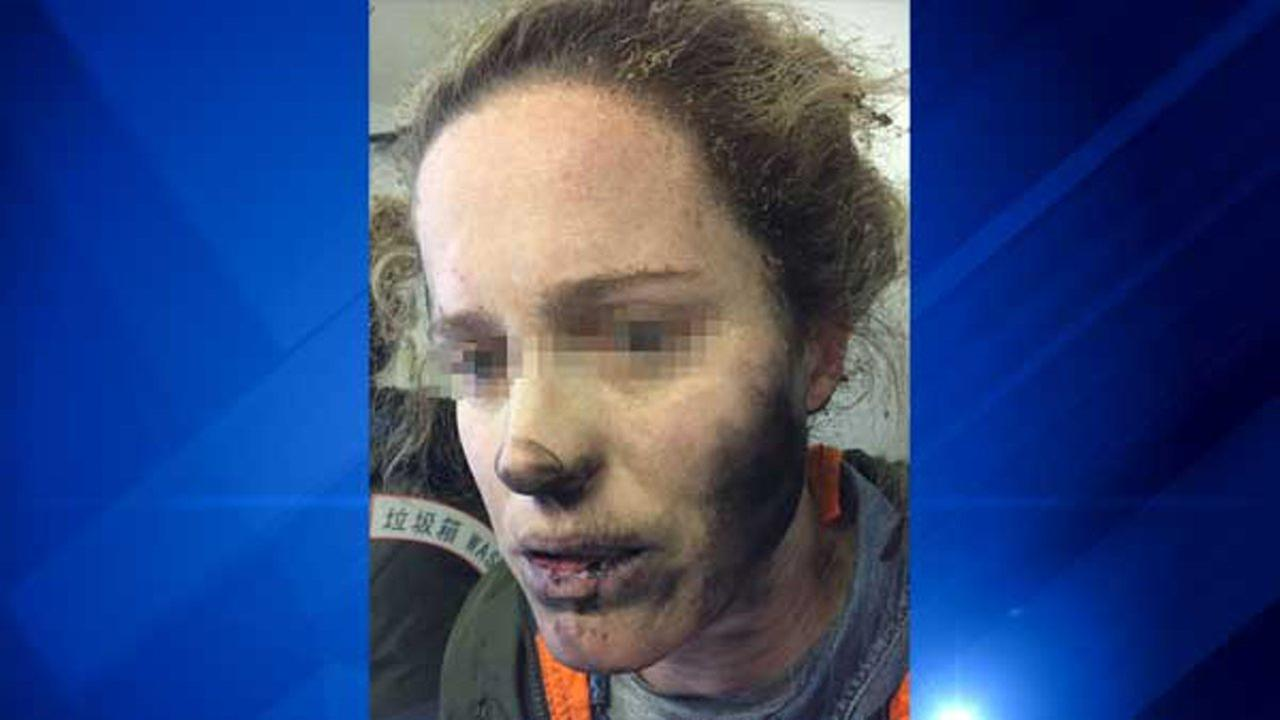 A passengers face was left blackened and her hand blistered after her battery-powered headphones caught fire while she was traveling on an international flight between Beijing and Melbourne.