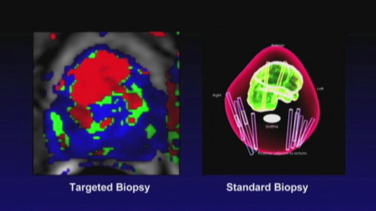 New targeted biopsies better for detecting high-risk prostate cancer