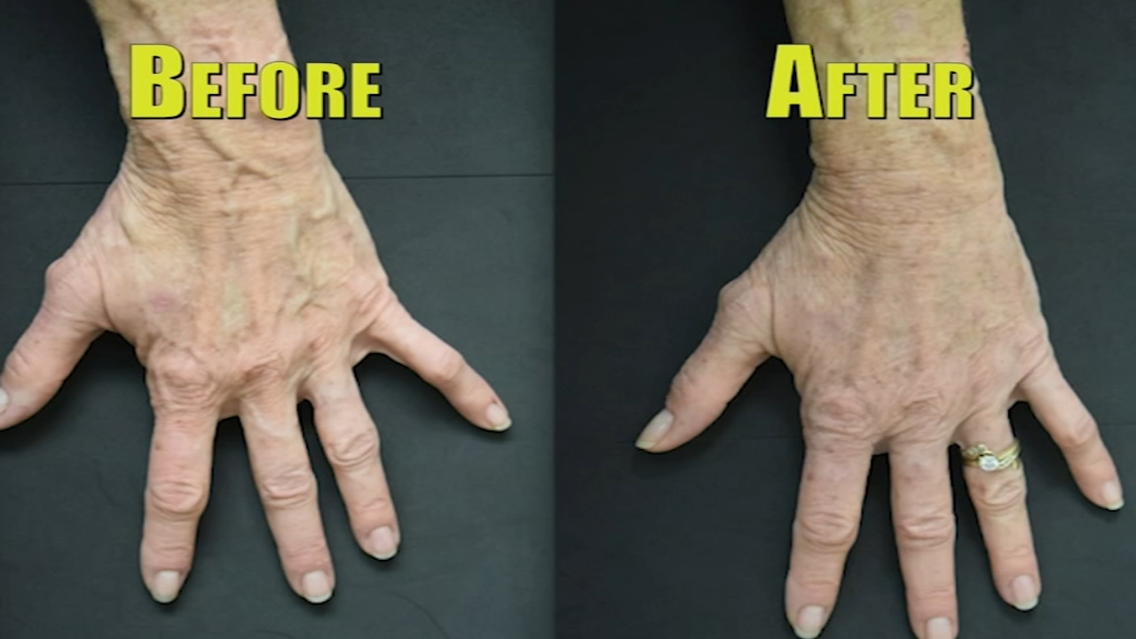 One doctor is removing bulging hand veins with a painless procedure.
