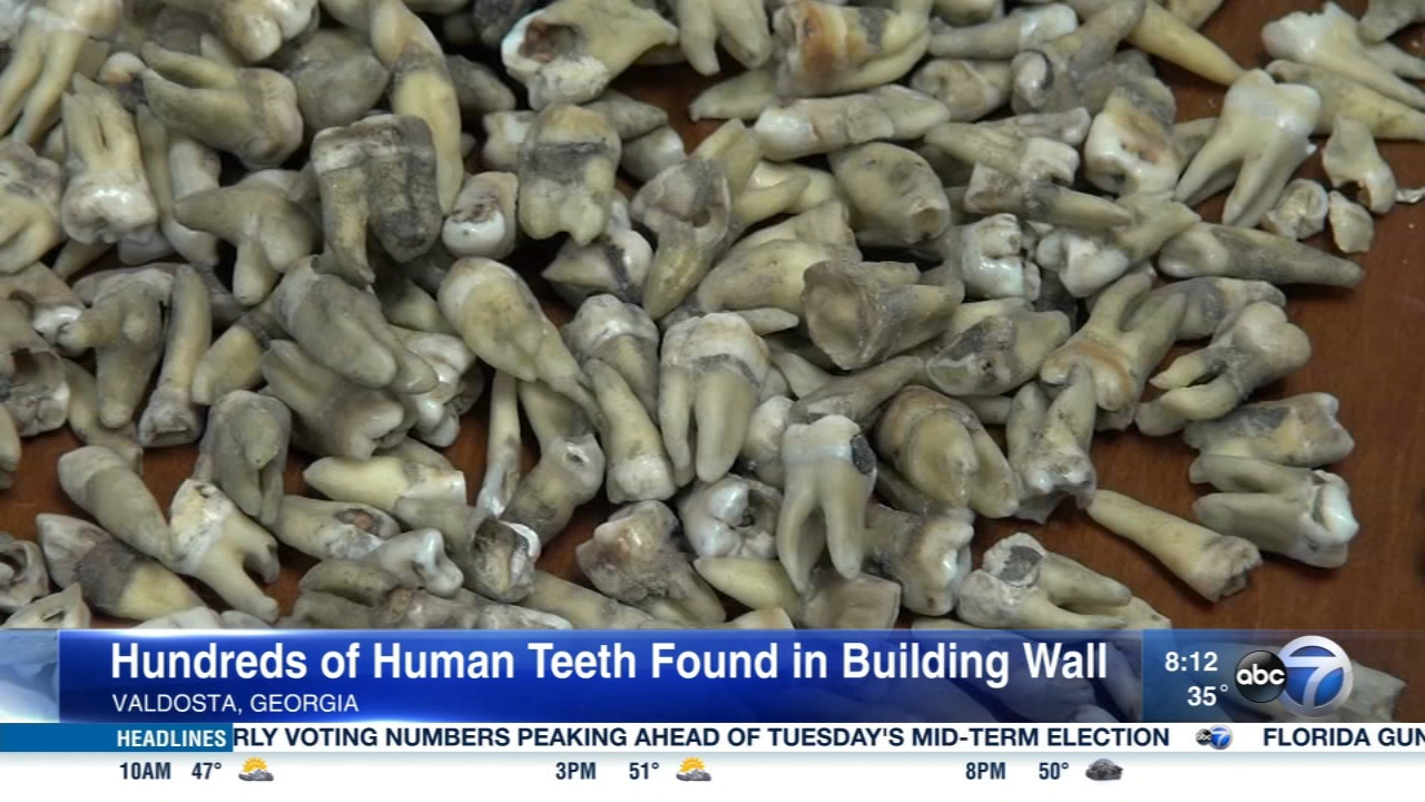 Nearly 1,000 human teeth were found behind the walls of a Georgia building.