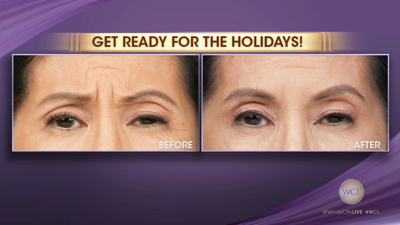 The Wrinkle Fairy has some tips for looking your best during the holiday season.