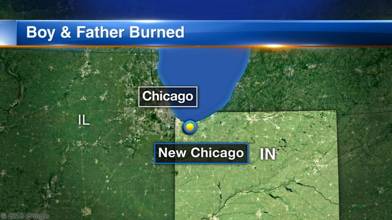A 7-year-old northwestern Indiana boy was airlifted to a Chicago hospital with burns after he poured gasoline on an outdoor fire.