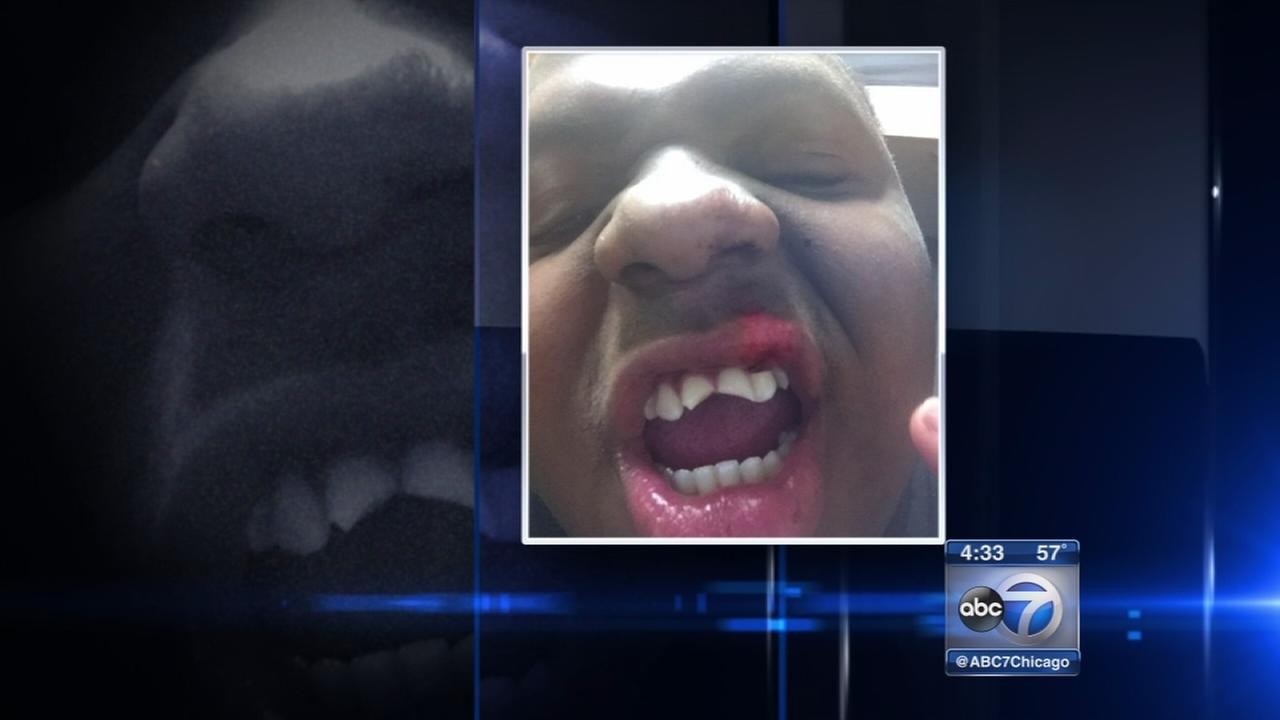 Iowa City fight involving Naperville teen was not a hate crime, FBI says