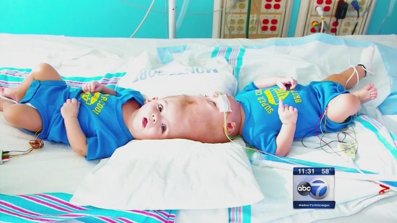 Conjoined twins separated successfully