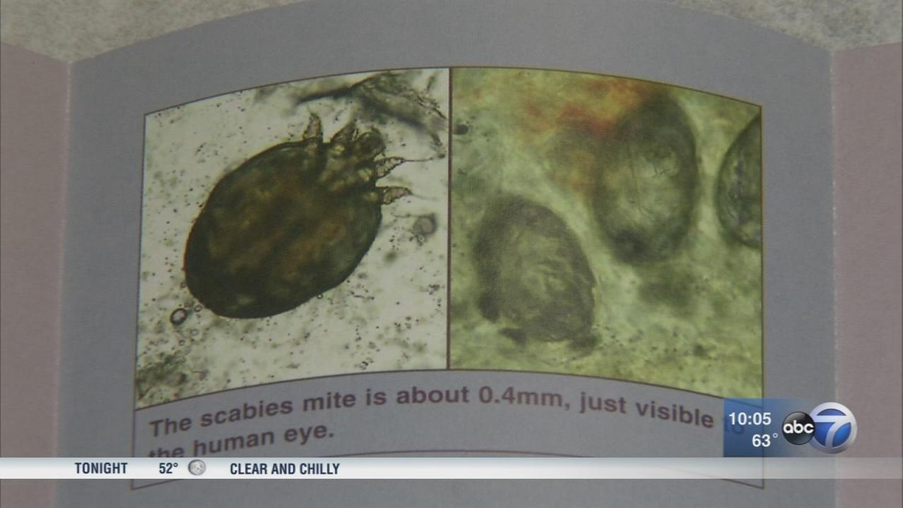 Scabies outbreak at Back of the Yards daycare center